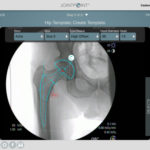 DePuy Synthes acquires JointPoint for better total hip surgical navigation