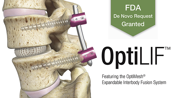 Spineology wins clearance for OptiMesh expandable IB fusion system