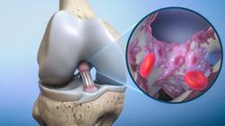 Biorez raises $3.5M to re-invent ACL repair
