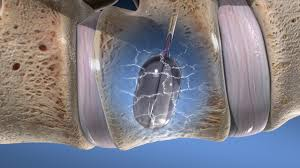 """A look back at the kyphoplasty story, a true """"game-changer"""" in orthopedics"""